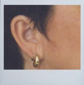 Ohr mit Rahmen
